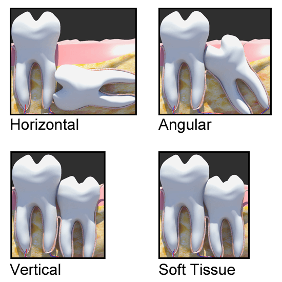 Wisdom Tooth Positions